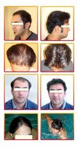 مرکز تخصصی کاشت مو , ترمیم مو , پیوند مو رنسانس