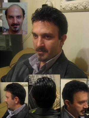 قیمت کاشت موی ایران فیت