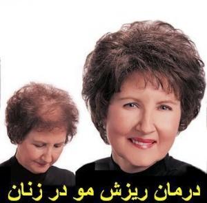 درمان ریزش شدید مو در خانم ها